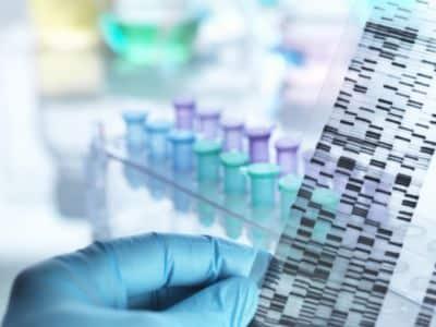 PCR swab test